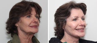 Facelift Before & After Photos Patient