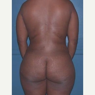 Liposuction of upper back and love handles after 1808586