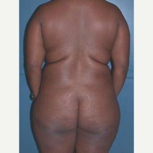 Liposuction of upper back and love handles before 1808586