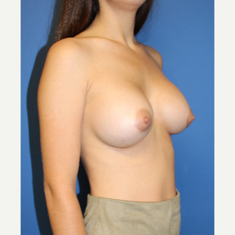 18-24 year old woman treated with Breast Augmentation after 3148454