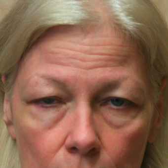 55-64 year old woman treated with Eyelid Surgery before 3046813