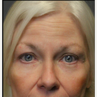 55-64 year old woman treated with Eyelid Surgery after 3046813