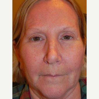 55-64 year old woman treated with Forehead Lift after 3659088