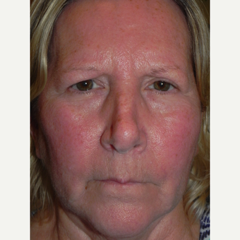 55-64 year old woman treated with Forehead Lift before 3659088
