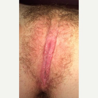 24 year old woman treated with Labiaplasty