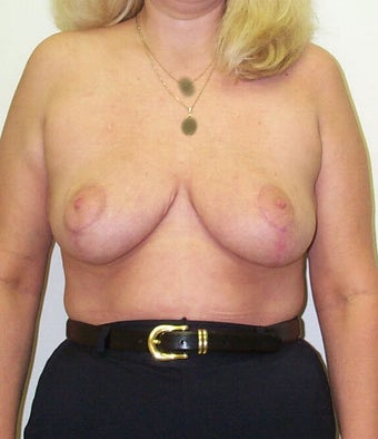 Breast reduction after 203479