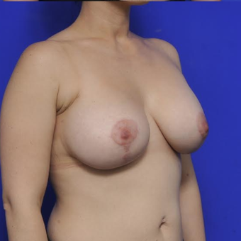 Augmentation Mastopexy after 3814630