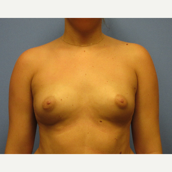 18-24 year old woman treated with Breast Implants before 3636069