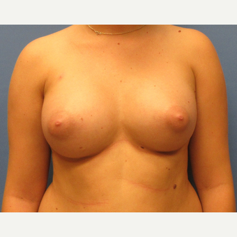 18-24 year old woman treated with Breast Implants after 3636069