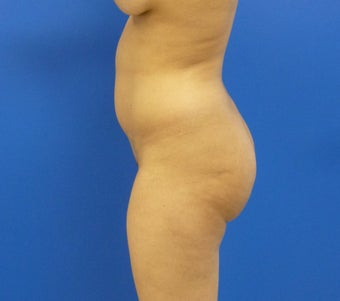 29 y.o. female – Liposuction of abdomen, flanks, and back with fat transfer to buttocks & hips – 1250 cc per side 1346718