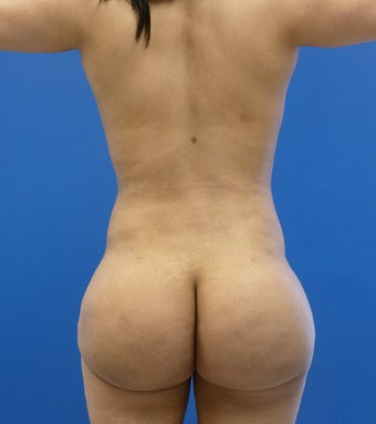 29 y.o. female – Liposuction of abdomen, flanks, and back with fat transfer to buttocks & hips – 1250 cc per side after 1346718