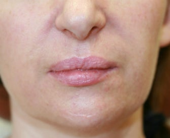 Filler in nasolabial folds (Juvederm) before 807764