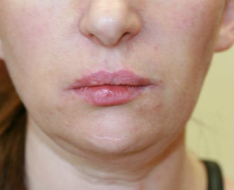 Filler in nasolabial folds (Juvederm) after 807764
