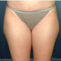 33 year old woman treated with Liposuction before 3721076