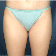 33 year old woman treated with Liposuction after 3721076
