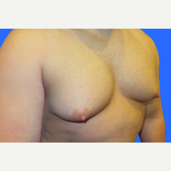 29 year old male, Gynecomastia before 3147100