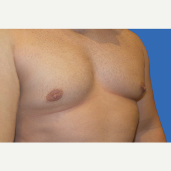 29 year old male, Gynecomastia after 3147100