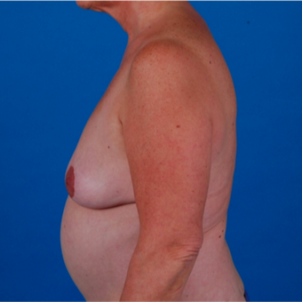 55-64 year old woman treated with Tummy Tuck before 3583360