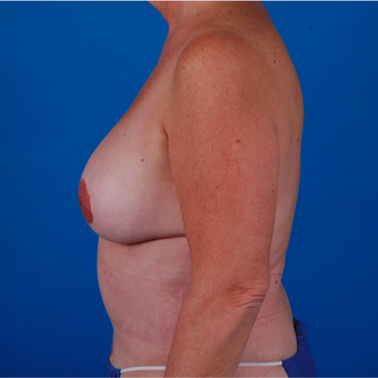 55-64 year old woman treated with Tummy Tuck after 3583360