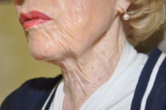 85 year old necklift after 652594