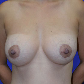 25-34 year old woman treated with Breast Lift with Implants after 3520055