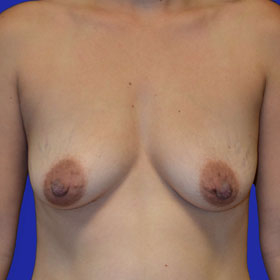 25-34 year old woman treated with Breast Lift with Implants before 3520055
