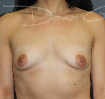 Breast Augmentation with Silicone Implants before 3365798