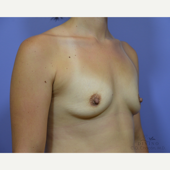 25-34 year old woman treated with Breast Augmentation before 3386406