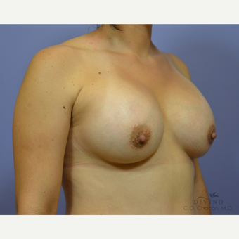 25-34 year old woman treated with Breast Augmentation after 3386406