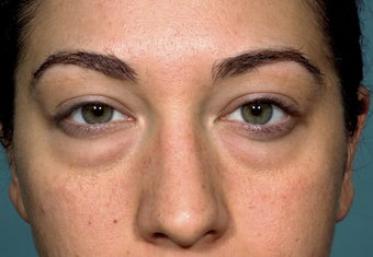 24 year old patient treated for puffy lower eyelids before 1249471