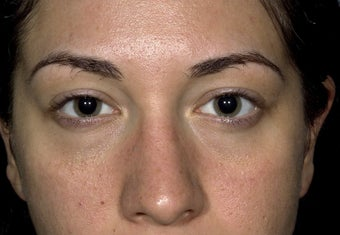 24 year old patient treated for puffy lower eyelids after 1249471
