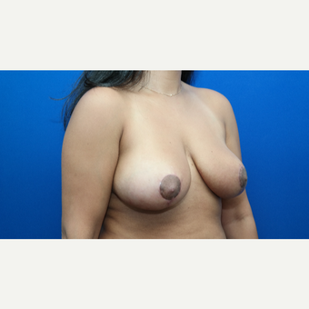 35-44 year old woman treated with Breast Reduction after 3104158