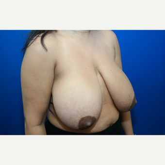 35-44 year old woman treated with Breast Reduction before 3104158