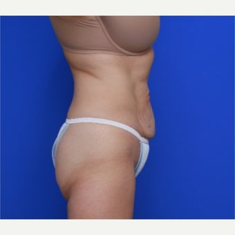 55-year old woman treated with CoolSculpting after 2256632