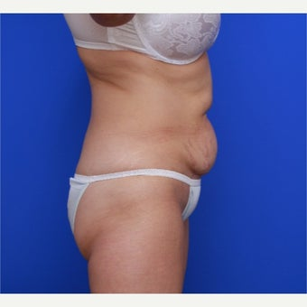 55-year old woman treated with CoolSculpting before 2256632