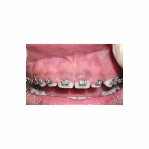 Gum enlargement treated with Gum Lift before 3696362