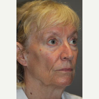 65-74 year old woman treated with Facelift before 3286753
