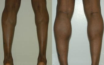 Calf Implants before 1111933