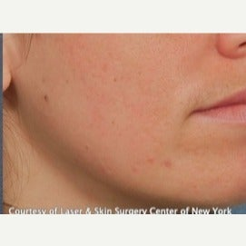 18-24 year old woman treated with Acne Scars Treatment after 1748020