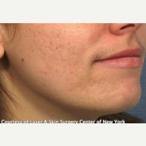 18-24 year old woman treated with Acne Scars Treatment before 1748020