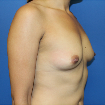 25-34 year old woman treated with Breast Augmentation before 3447274