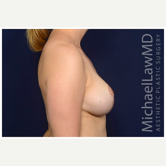 35-44 year old woman treated with Breast Lift after 3103645