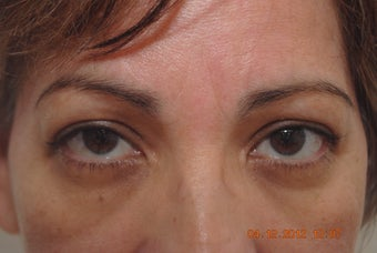 upper lid blepharoplasty before 1090080