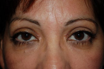 upper lid blepharoplasty after 1090080