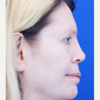 45-54 year old woman treated with Non Surgical Nose Job after 3711531