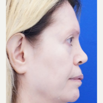 45-54 year old woman treated with Non Surgical Nose Job before 3711531