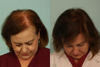 Hair Transplantation before 993586