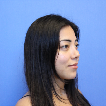 25-34 year old woman treated with Revision Rhinoplasty after 3377798