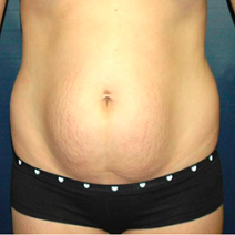 26 year old woman treated with Tummy Tuck before 3578454