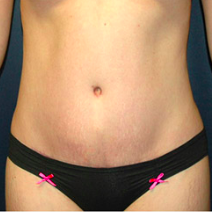 26 year old woman treated with Tummy Tuck after 3578454